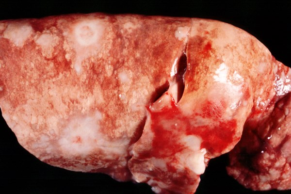 Lung from adult sheep showing atypical form of sheep pulmonary adenomatosis. White, hard nodules of various sizes are distributed throughout the lung.