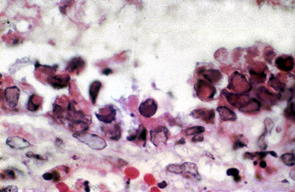 Severe bronchiolar necrosis with inclusions in the remaining bronchiolar cells is a feature of Aujeszky's disease.