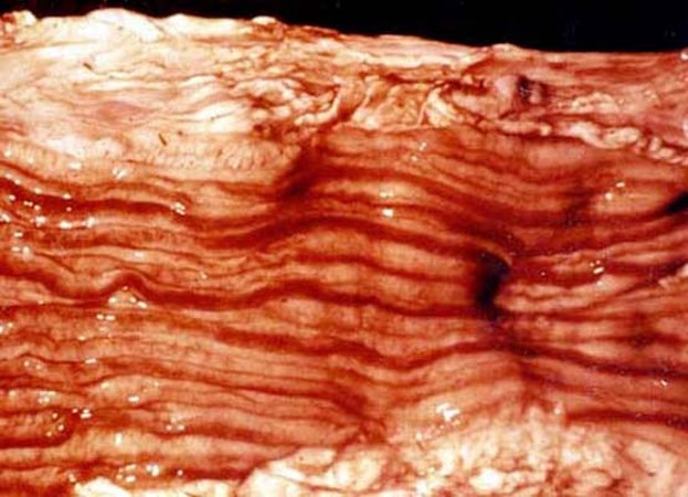 Hyperemia and haemorrhages in the longitudinal folds of the colon. Zebra striping.