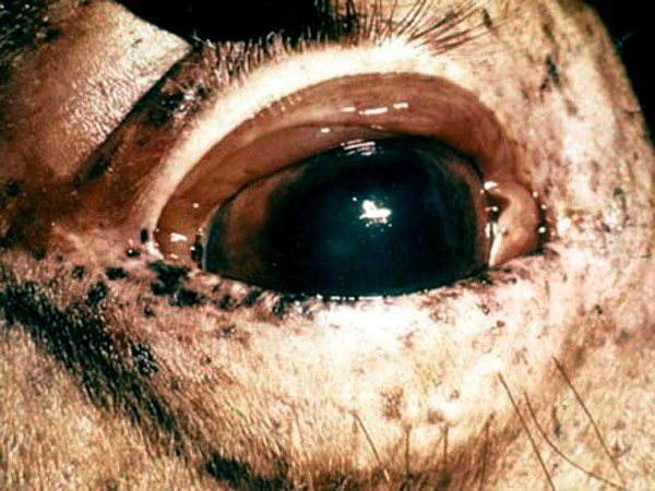 Congestion and oedema of the conjunctiva. Congestion is a consistent clinical finding in AHS.
