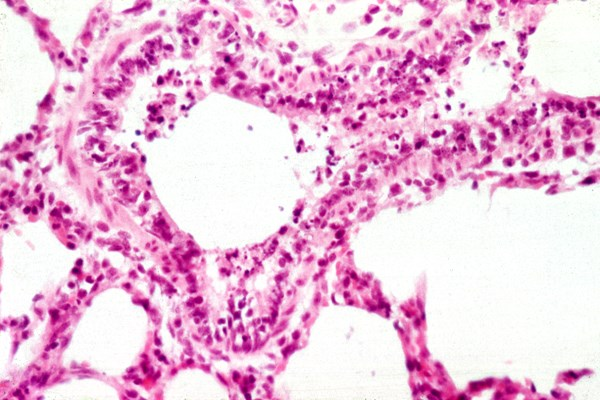 Note the necrosis of lung epithelia and obstruction of the airways with inflammatory cells.