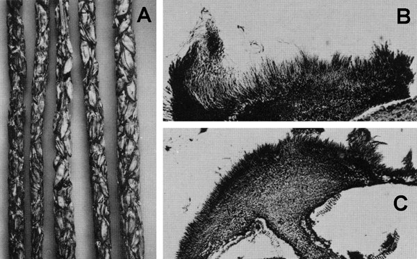 A, Mummified spikes with developing conidial acervuli; B-C, section of conidial acervuli. CMI Descriptions of Pathogenic Fungi and Bacteria No. 640. CAB International, Wallingford, UK.