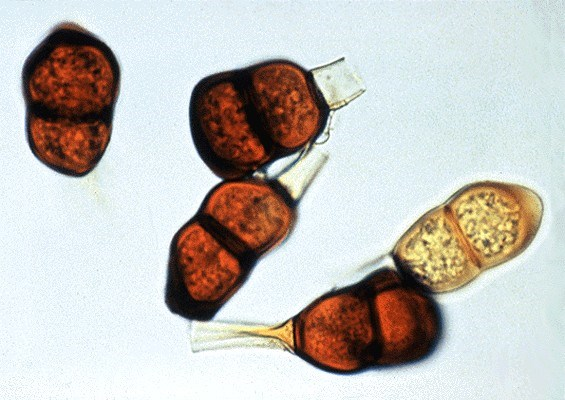 Teliospores are  two-celled and measure 27-53 µm.