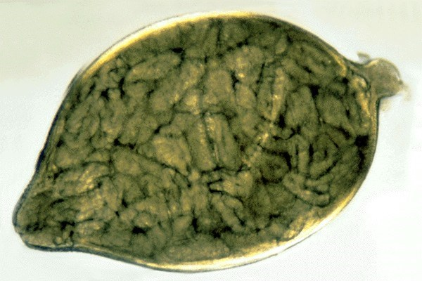 Heterodera glycines (soybean cyst nematode); cyst containing eggs.