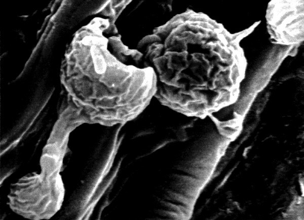 Cystospore germination of Plasmopara halstedii on an epicotyl surface of a sunflower seedling, 5 hours after inoculation. The formation of an appressorium is seen against the epidermis at a probable penetration site (scanning electron micrograph).
