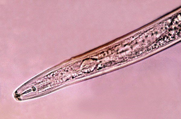Detail of female nematode isolated from yam tuber in Papua New Guinea.