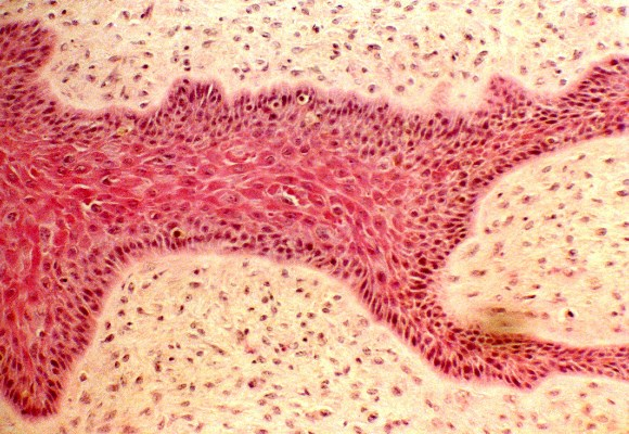 Section of fibropapilloma.  Fibroblastic proliferation in the dermis with hyperplastic epidermal cells invaginating into the dermis.  Haematoxylin and Eosin stain.