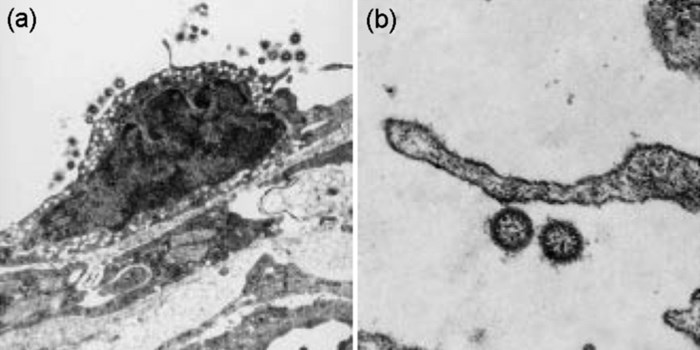 Transmission electron micrographs of ISAV in vivo. (a) Virus particles budding from cardiac endothelial cells of ISA-infected Atlantic salmon. (b) Higher magnification of virus. Note the presence of an envelope and granules (x 55,000). (Photo: Are Nylund, Department of Fisheries and Marine Biology, University of Bergen, Norway.)
