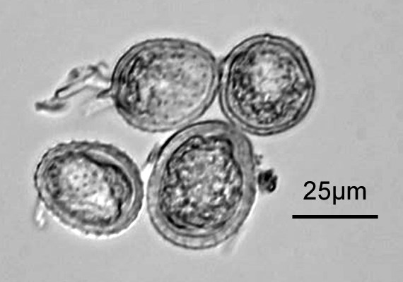 Urediniospores. Original X400. Note scale bar.