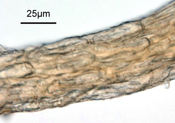 Teliospores in telial column. Original X400. Note scale bar.