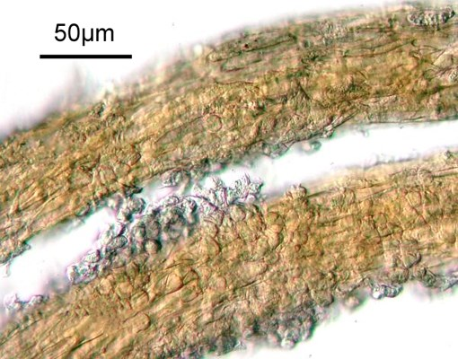 Teliospores in telial column, with basidiospores. Original X200. Note scale bar.