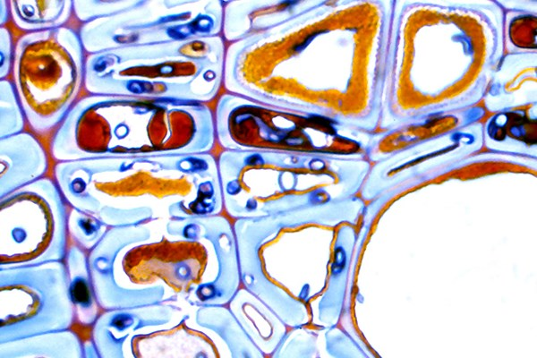 Transverse section of London plane wood naturally infected with I. hispidus. Phenolic compounds area apparent within the lumina of axial parenchyma and adjacent fibre tracheids. Degradation of cell walls occurs only where hyphae have escaped nonconducive conditions within the lumina.