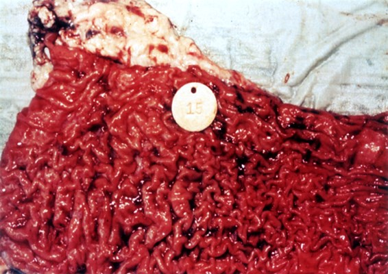 Gross pathology of section of ileum from cow with clinical disease, showing corrugation and thickening.