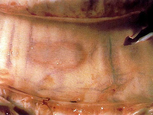 An LSD (pox) lesion in the tracheal mucosa.
