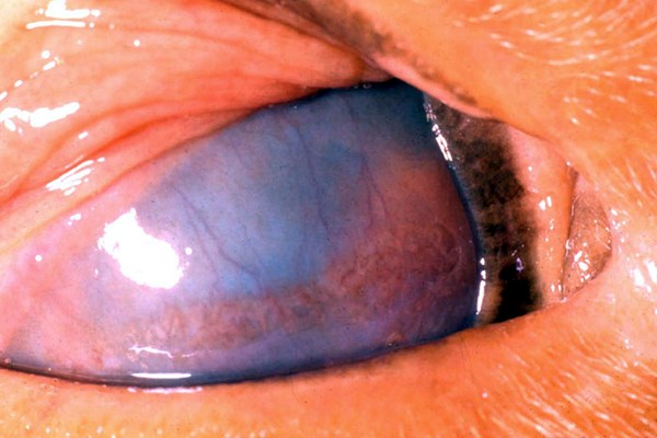 Symptoms. Eye of cow with acute MCF, illustrating the deep stromal keratitis which accompanies the panophthalmitis.