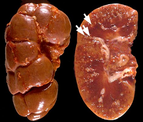 Kidneys from cow with chronic MCF showing with scarred arteries (arrowed).
