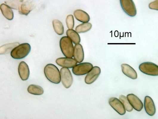 Ascospores of Phyllachora maydis. Original x1000.  Note scale bar.