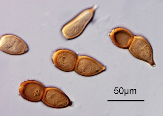 Teliospores of Puccinia buxi on Buxus spp.  Original x400. Note scale bar.