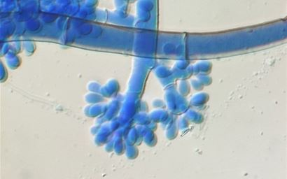 Botrytis cinerea - fungal hyphae and conidia
