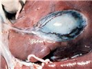 Oedema of the gall bladder.