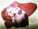 Haemorrhage at the base of the pulmonary artery and a congested oedematous lung.