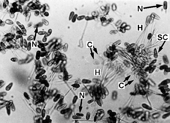 Macroconidia (C) of C. africana, many of which have germinated to produce a hyphal process (H) and secondary conidium (SC). (N) indicates a nucleus.