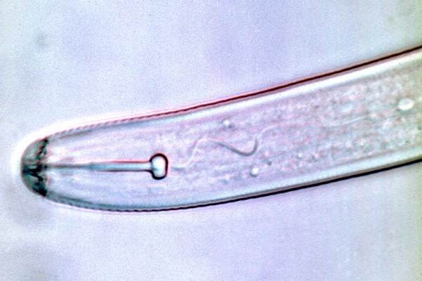 Second stage juvenile, anterior portion showing stylet and rounded knob shape.