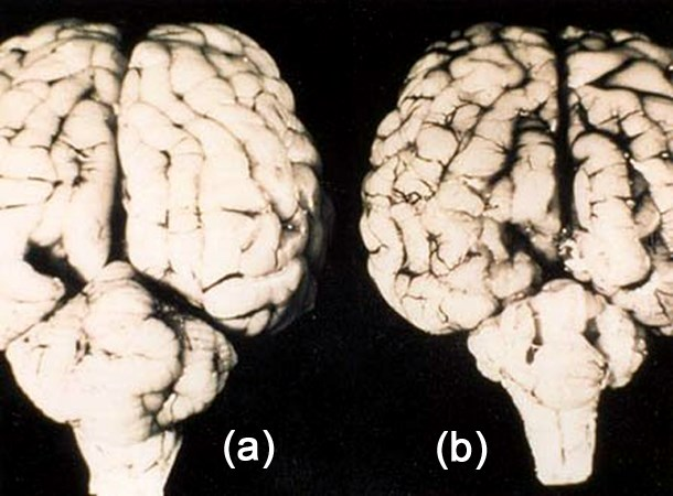 (a) Normal brain: (b) Brain with cerebellar hypoplasia resulting from a congenital Bluetongue infection.