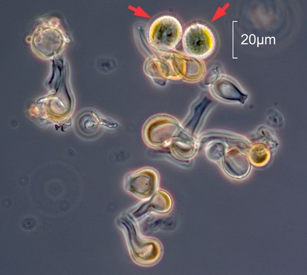 Photomicrograph of Puccinia brachypodii var. brachypodii. This rust fungus is found on Brachypodium sylvaticum.  The round yellowish objects [arrowed] are urediniospores and the club-shaped objects are paraphyses. (Note scale bar)