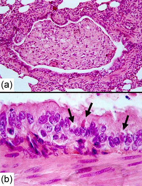 Canine distemper (hardpad disease): pathology. Lung lesions in an African wild dog (Lycaon pictus) with canine distemper. Hematoxylin and eosin staining. (a) Bronchiole occluded by inflammatory cells and cell debris. (b) Detail of (a), showing multiple eosinophilic intracytoplasmic viral inclusions (arrowed) in bronchiolar epithelium.