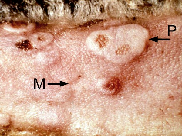Sheep pox lesions on the tail of a sheep. The macular stage (M) progresses to the papular stage (P) which is erythematous, edematous, and has central necrosis.
