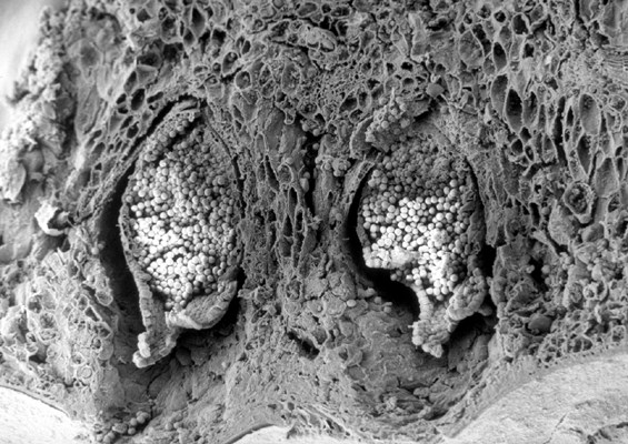 SEM cross-section of an apple leaf showing young aecia cluster-cups of the cedar-apple rust fungus on the underside of the leaf.