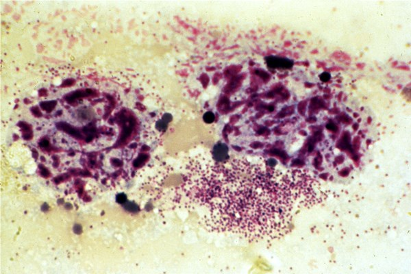 Individual sporozoites visible in a smear of a tick salivary gland.